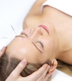 Acupuncture therapy - alternative medicine. Portrait of a beautiful woman in acupuncture therapy